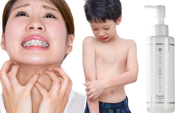 カサカサ・敏感肌荒れ\無添加!親子使用/バリア保湿ローション